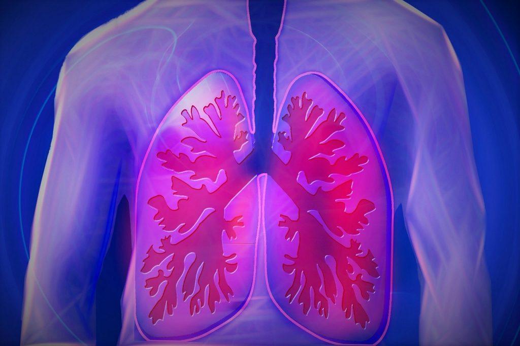 Erhöhter Blutdruck im Lungenkreislauf ist eine der charakteristischen Auswirkungen von Lungenhochdruck.