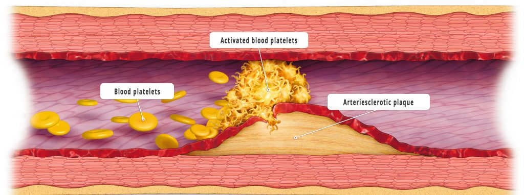 Blood lipids and white blood cells accumulate in the inflamed vessel wall and cause a thickening (plaque). (Credit: Bayer research)
